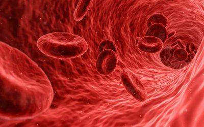 Què és la cirurgia vascular?